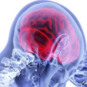 Disease and brain